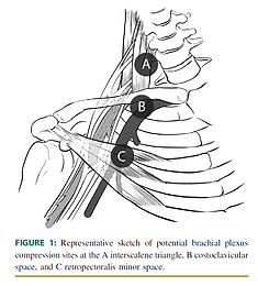 Entrapment neuropathies? Could the thoracic outlet contribute to symptoms?