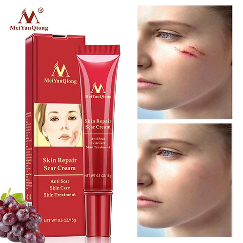 Acne Scar Removal Face Cream Acne Spots Acne  Cream Anti Scar Stretch Marks