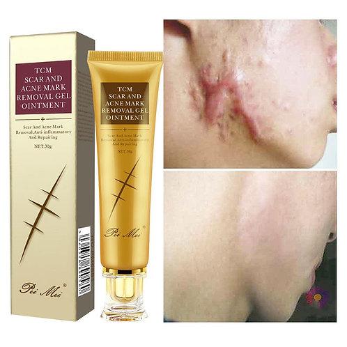 30g Acne Stretch Marks Face Gel Whitening Moisturizing Body Skin Care Aichun