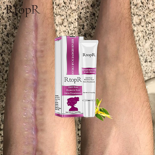 Acne Scar Stretch Marks Remover Cream Skin Repair Face Cream Acne Spots Acne