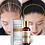 Thumbnail: Original Authentic 100% Hair Loss Liquid Health Care Hair Growth Serum