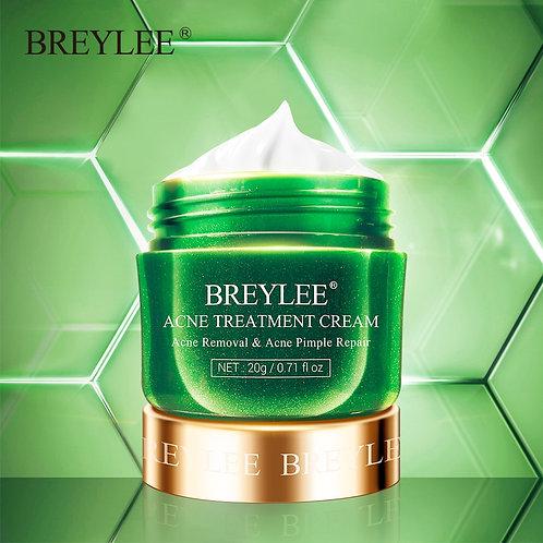Acne Anti Acne Face Cream Pimple Removal Spots Oil Shrink Pores  Skin Care 20g