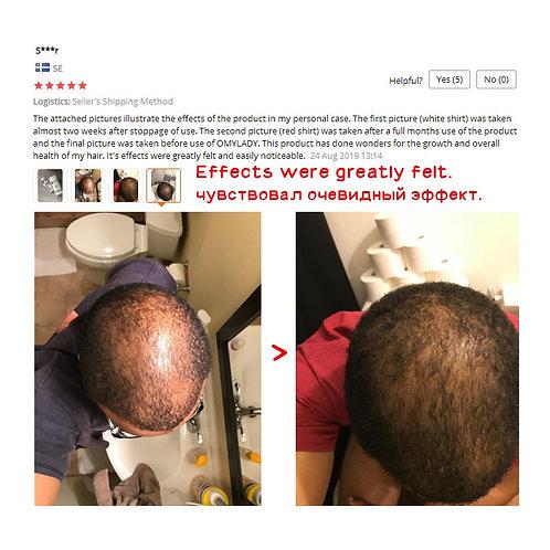 Anti Hair Loss Hair Growth Spray Essential Oil Liquid