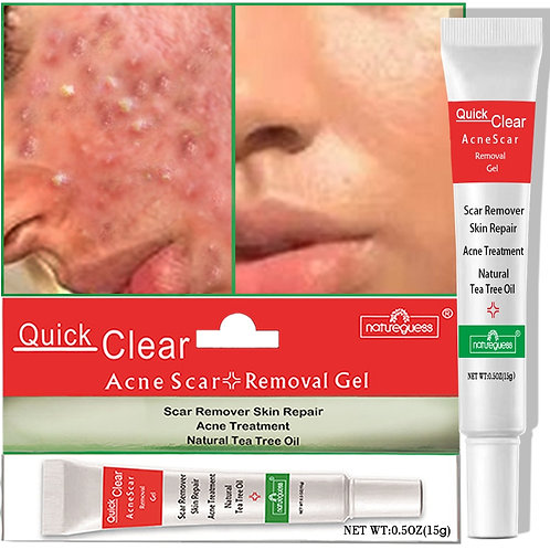 Acne Treatment Face Cream Scar Blackhead Remover Repair Gel Oil Control Shrink P