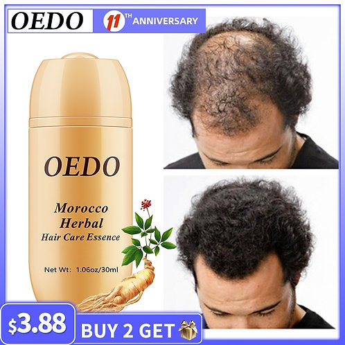 Moroccan Herbal  Hair Growth  Oil Quick  Hair Root   Repair Curly Dry Scalp Care