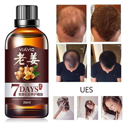 Ginger Hair Growth Essence Oil Hair Care