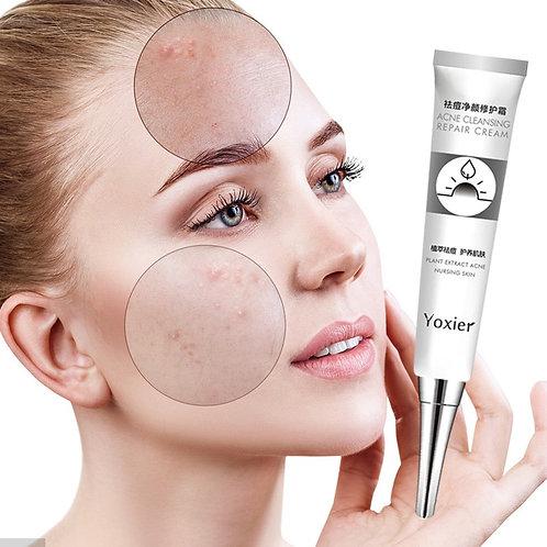 Acne Treatment  Anti Acne Pores Face Care  Acne Scar  Oil Control Skin Care