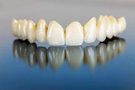 dentes-em-porcelana