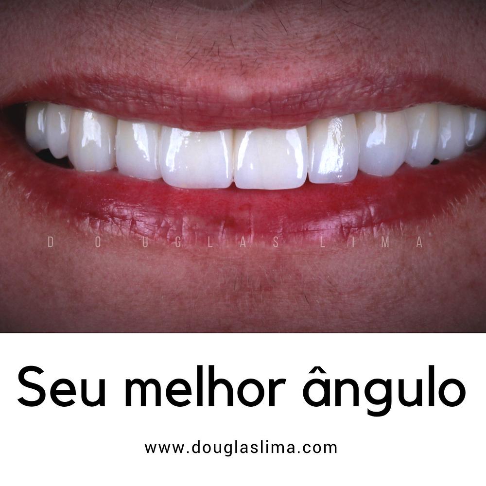 Dentes em porcelana