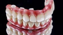 Manutenção de Prótese Protocolo (prótese total sobre implantes)