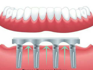 Como limpar a prótese fixa sobre implantes??