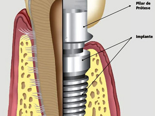 O que é o Implante Dental