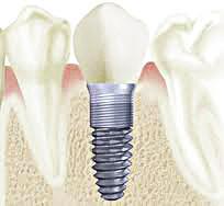 os implantes dentais