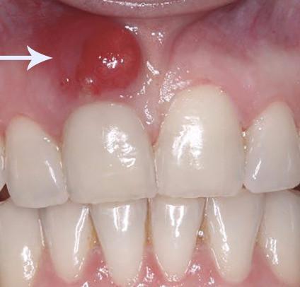 dente com fístula, agende com dr Douglas lima