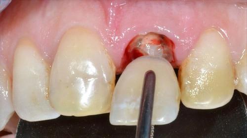 dente quebrou, fale com Dr Douglas 48 98413 4579