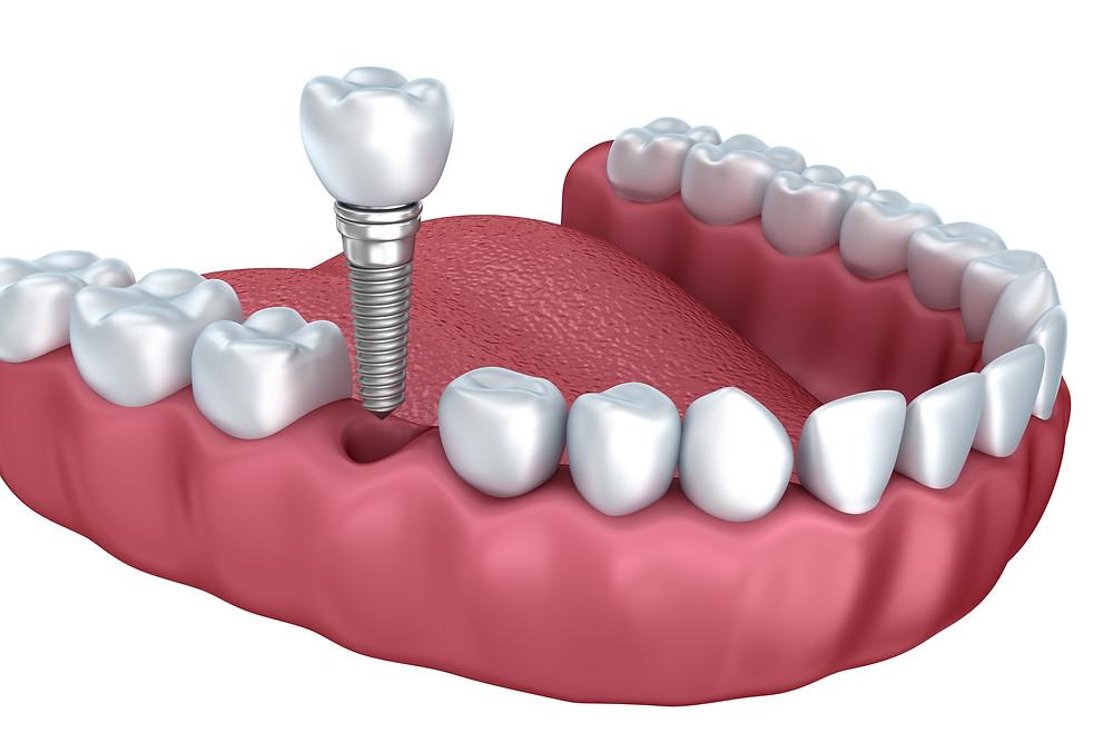 o implante dental dói?
