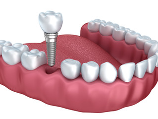 O Implante Dentário Dói??