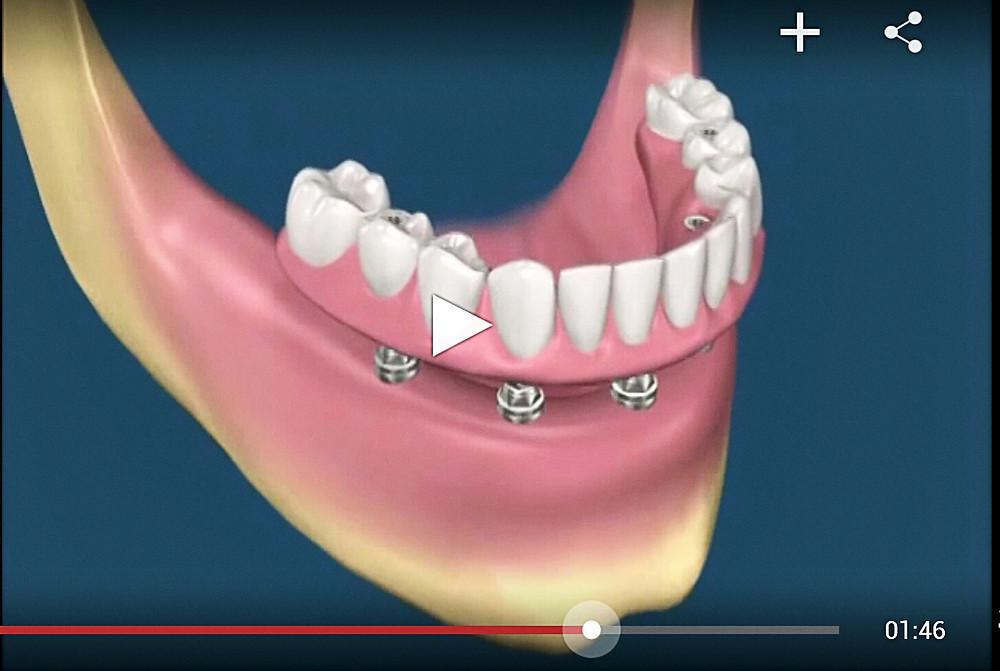 vídeo sobre protese protocolo