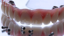 Diferenças entre a Protocolo de acrílico e porcelana