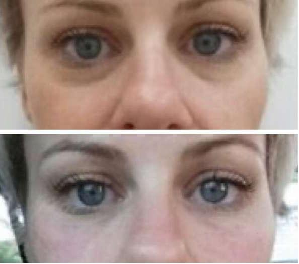 Dermal Fillers & Tear Troughs - Before & After