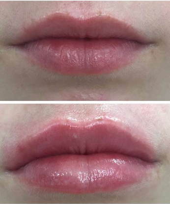 Lips - Before & After