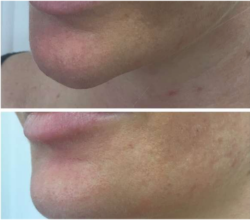 Lower Face Dermal Filler - Before & After