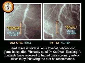 Az yağlı Vegan beslenerek kalp krizi riskinizi sıfıra indirebilirsiniz!
