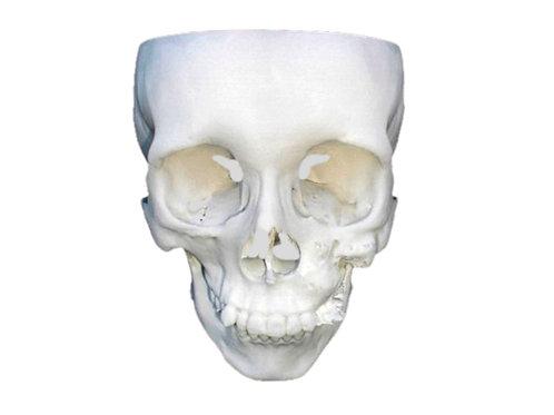 Estereolitografía de cráneo completo