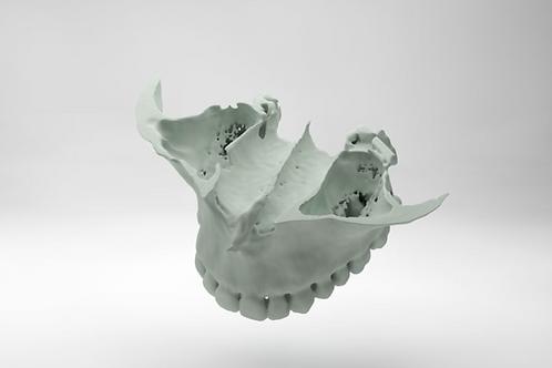 Estereolitografía de maxilar superior