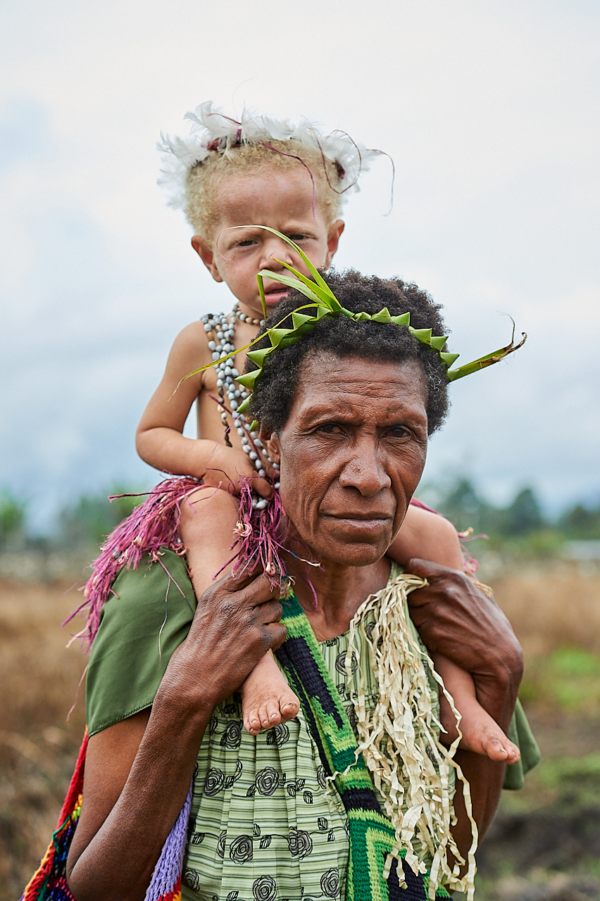 Mother and albino child,Mount Hagen