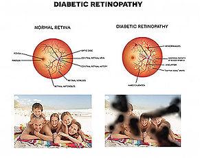 retina-3-new.jpg