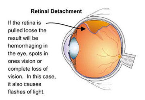 retina-4-new.jpg