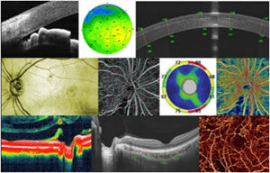 retina-1.jpg