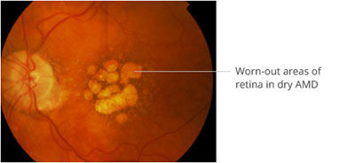 retina-7.jpg