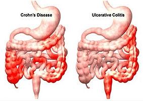 Ελκώδης Κολίτις και Νόσος του Crohn
