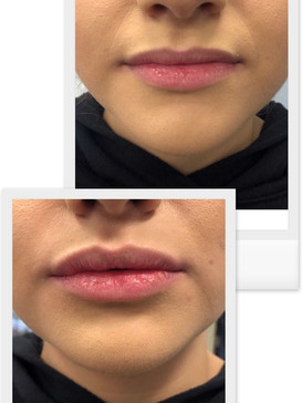 Lip-injections-cloud-la-med-spa