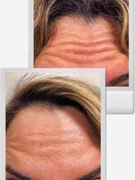 Cloud La Med Spa Botox Forehead Results