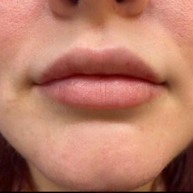 Lip-Enhancement-Juvederm-Cloud-La-Med-Spa
