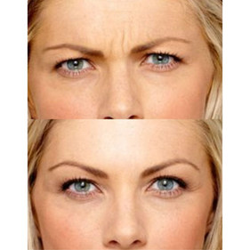 Cloud_La_Med_Spa_botox_injectable