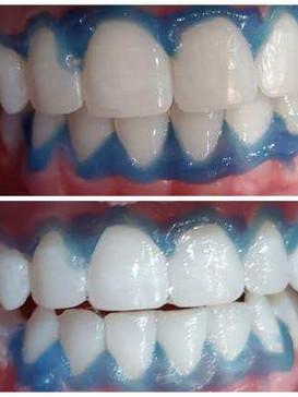 Teeth-Whitening-Cloud-La-Med-Spa