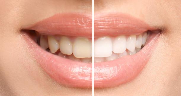 dentica-bieleni-zubu.jpg