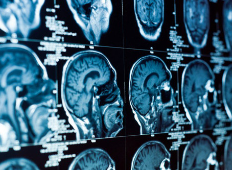 Je Gebuikt Maar 10% van Je Hersenen...
