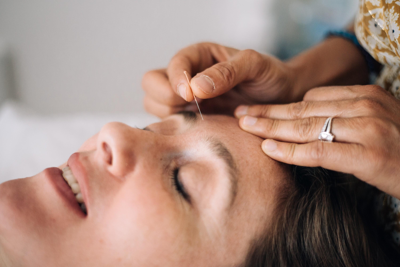 acupuncture du visage - aculift