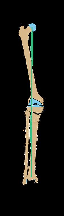ostéotomie tibiale
