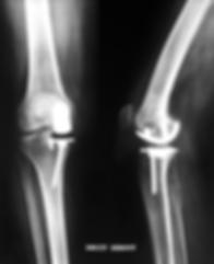 prothèse unicompartimentaire interne