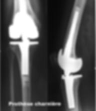 prothèse de genou à charnière