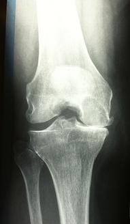 arthrose du genou