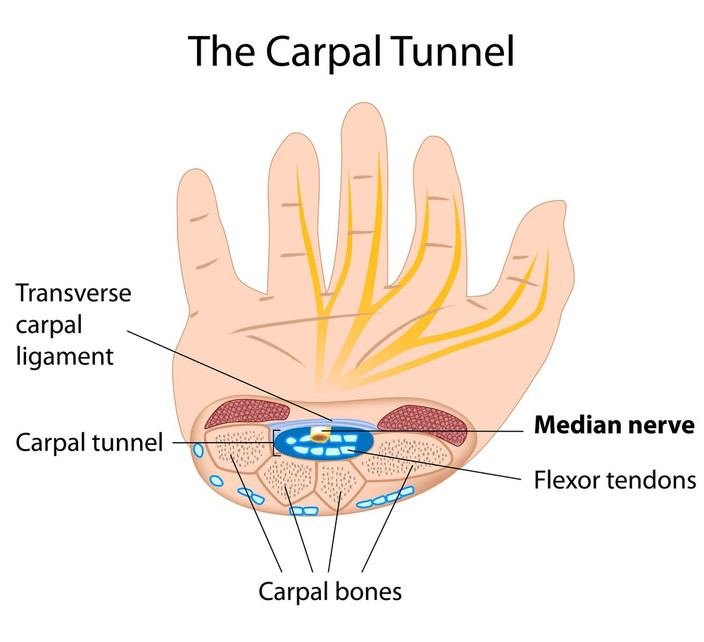 Desk Job Causing Carpal Tunnel? Steps to Take