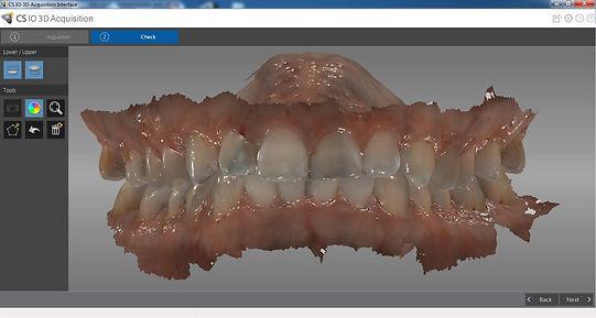 Intraoral scan.jpg