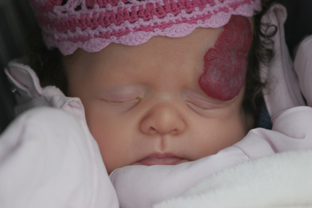 Carys at 2 months old, pre-surgery. The haemangioma was to double in size over the next 2 months.